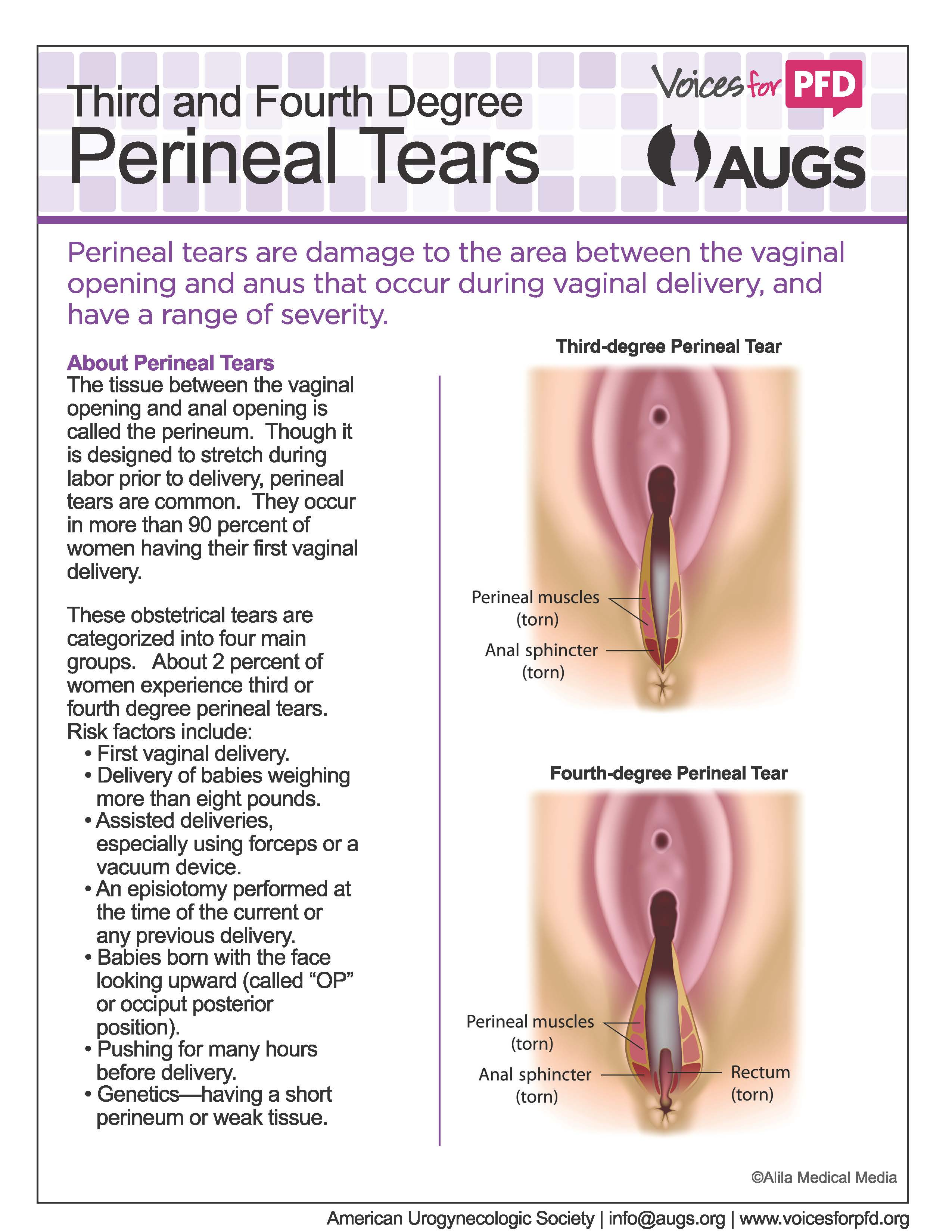 Perineal_Tears_Page_1