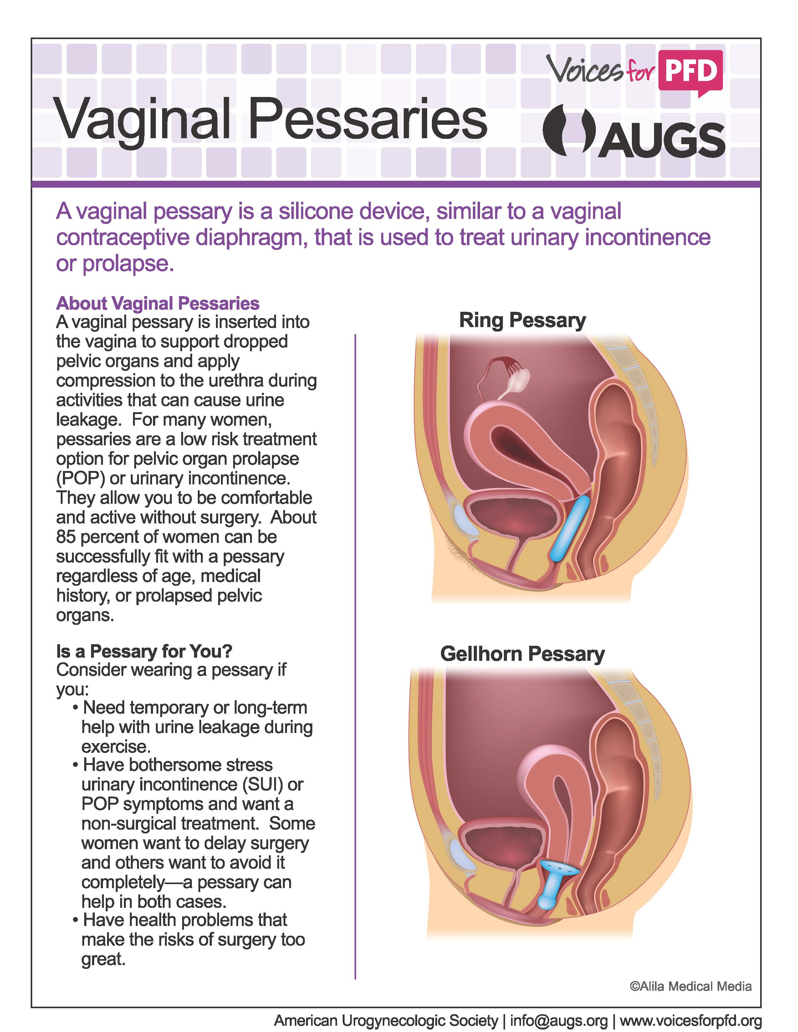 Vaginal_Pessaries_Page_1
